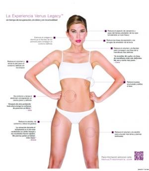 Venus Legcay Patient Brochure Spanish Template.indd
