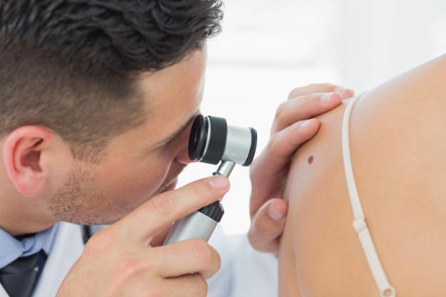 dermatologo-revisando-mole-en-mujer_13339-234968