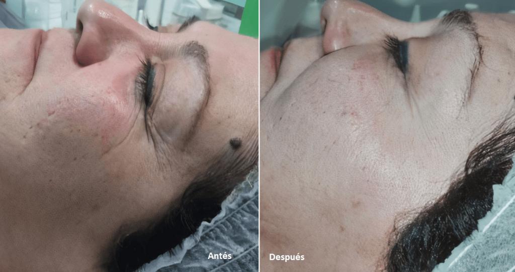 emodelacion facial oxigeno antes despues