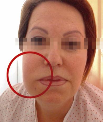 edema facial