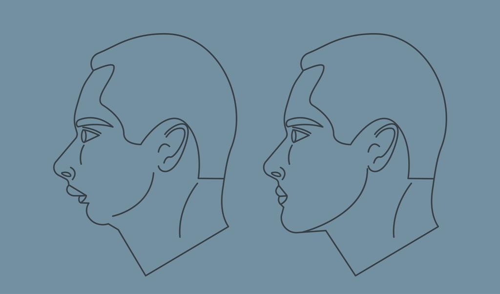Masculinización de la mandíbula
