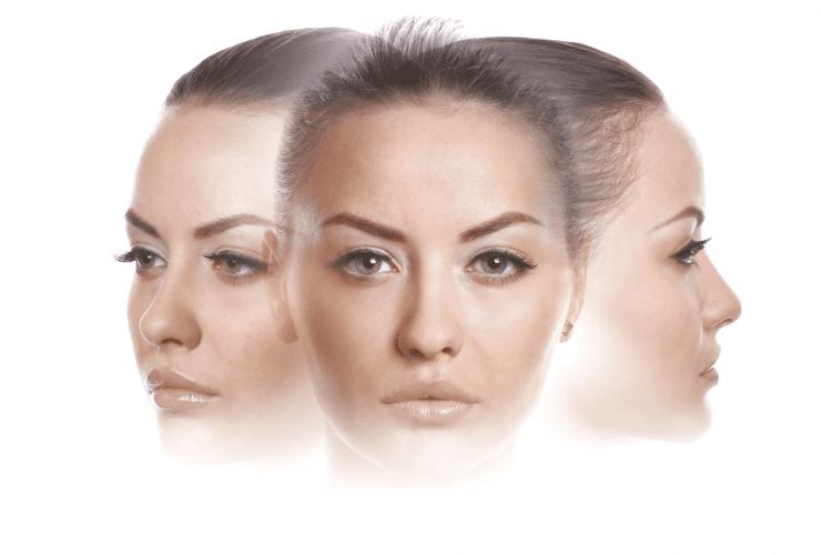 remodelacion facial 360