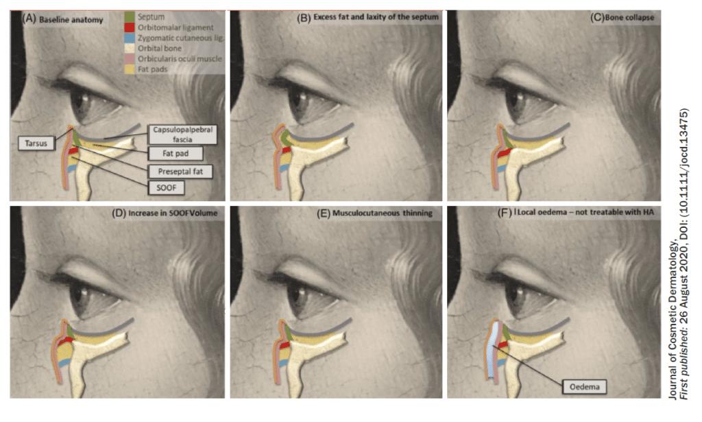 tratamiento de la ojera