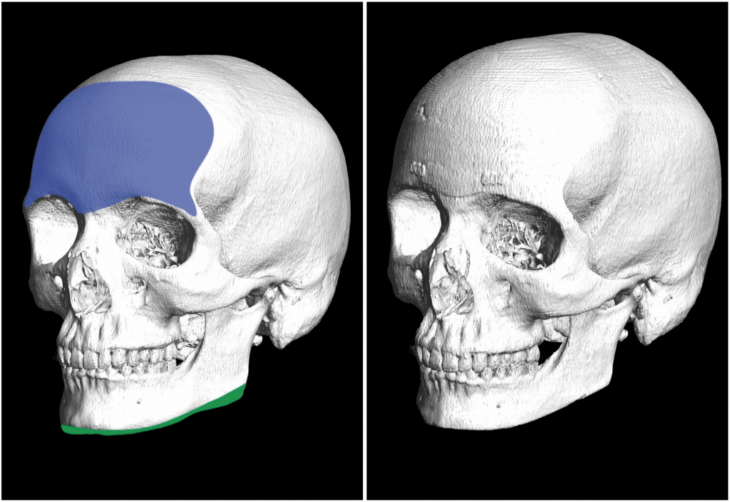 armonizacion facial