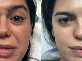 asimetrias faciales