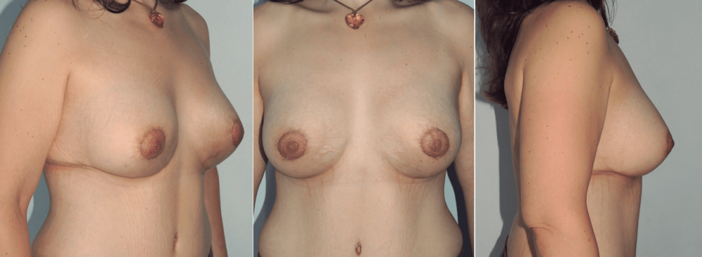 cirugia postbariatrica